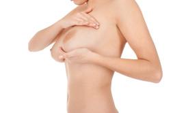 Bruststraffung Mastopexie schlaffe Brust Brüste